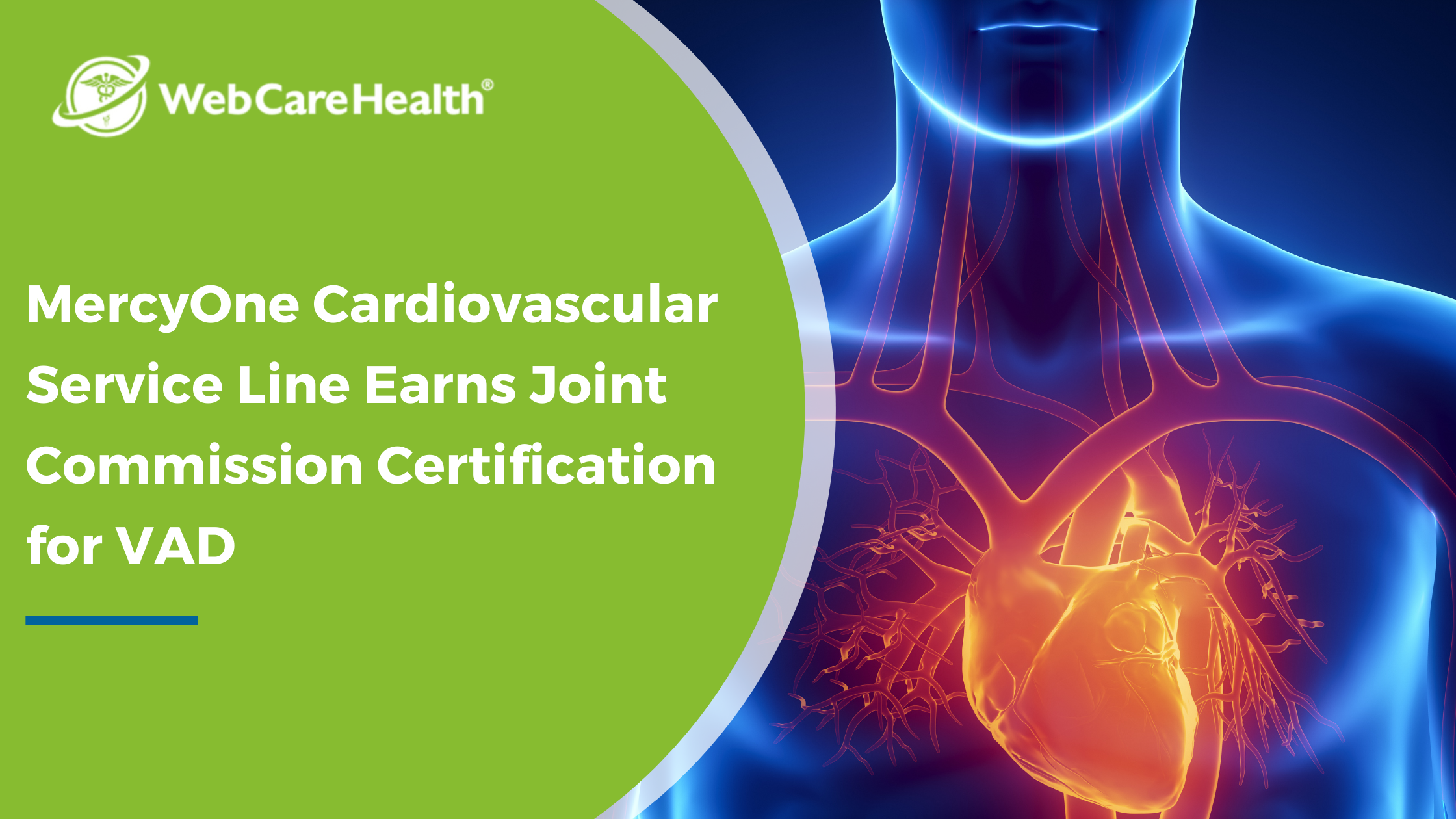 MercyOne Cardiovascular Service Line Earns Joint Commission Certification for VAD